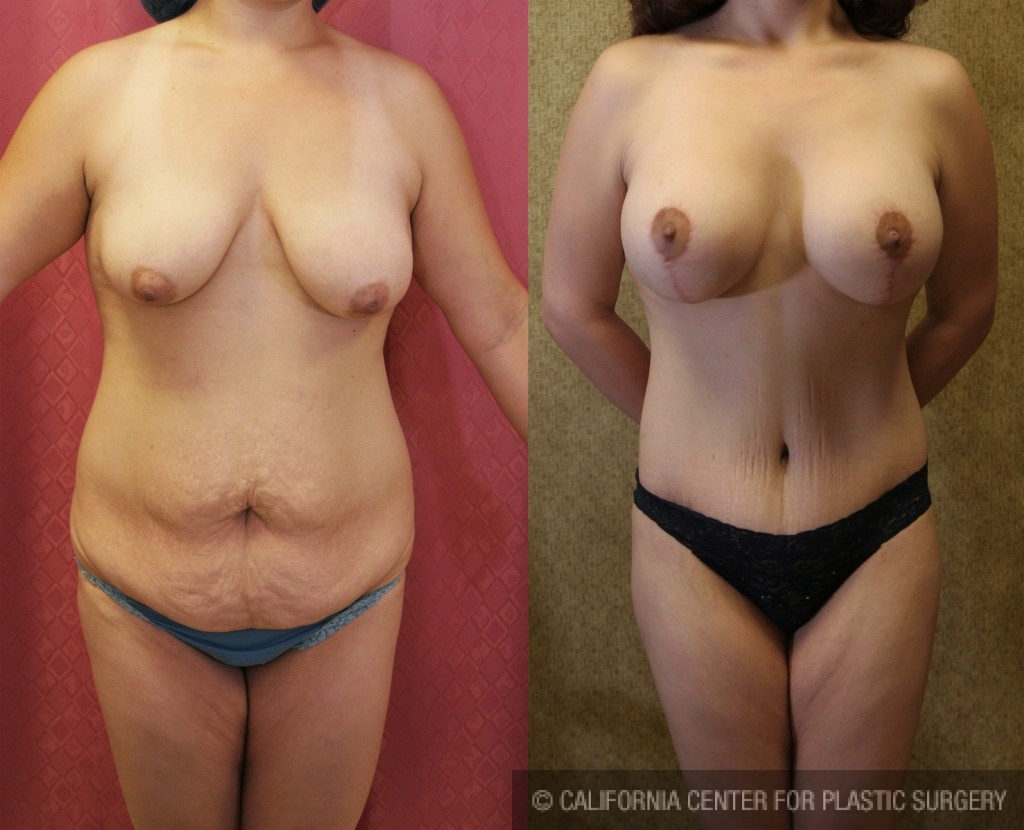 Mommy Makeover Before & After Patient #5984