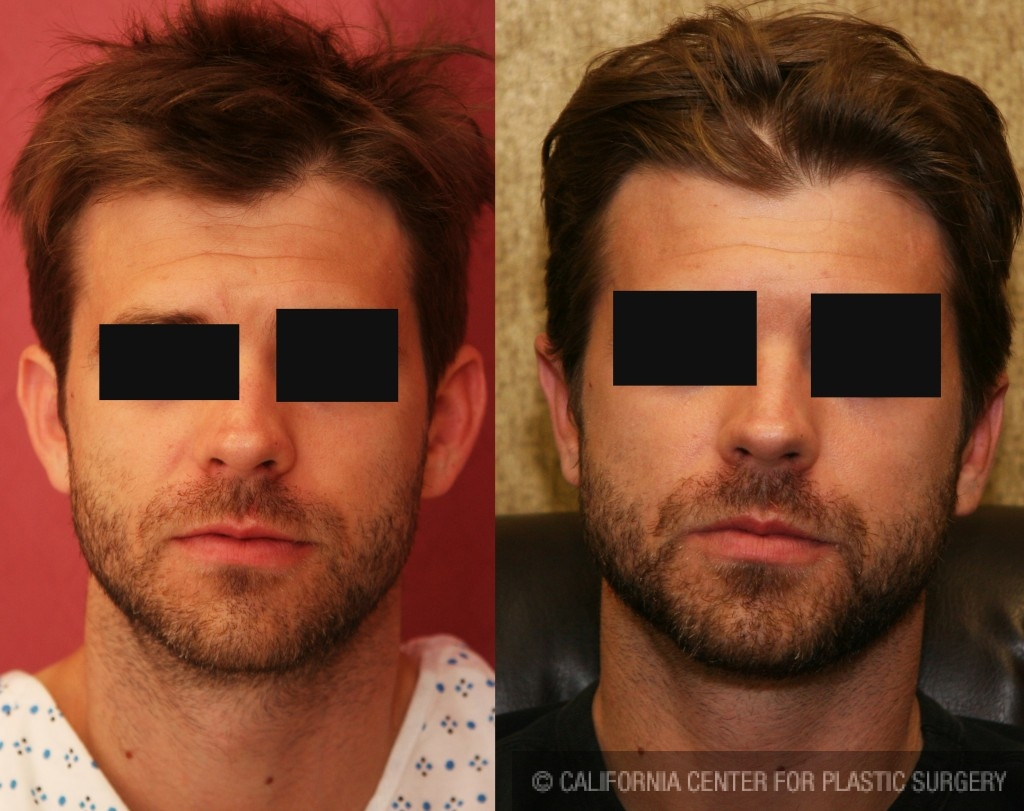 Ear (Otoplasty) Before & After Patient #6447