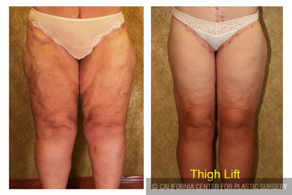 Thigh Lift Before & After Patient #4198
