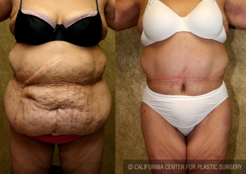 Patient 5898 Tummy Tuck Plus Size Before And After Photos Beverly Hills Plastic Surgery Gallery Los Angeles Ca Dr Sean Younai