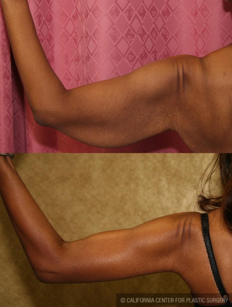 Arm Lift (Brachioplasty) Before & After Patient #6125