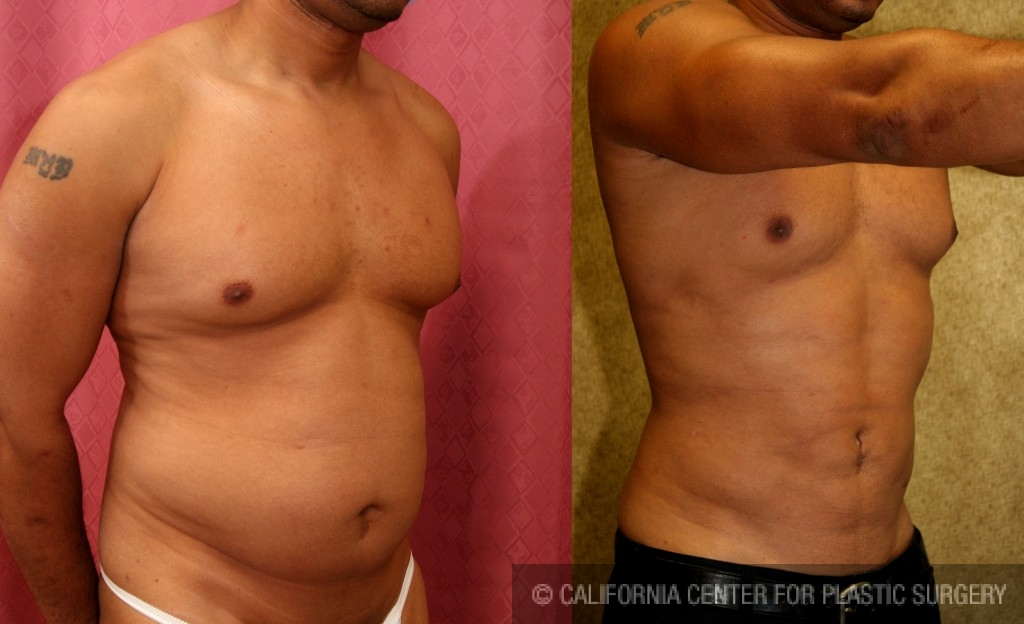 Patient 5656 Male Liposuction Abdomen Before And After Photos Beverly Hills Plastic Surgery Gallery Los Angeles Ca Dr Sean Younai