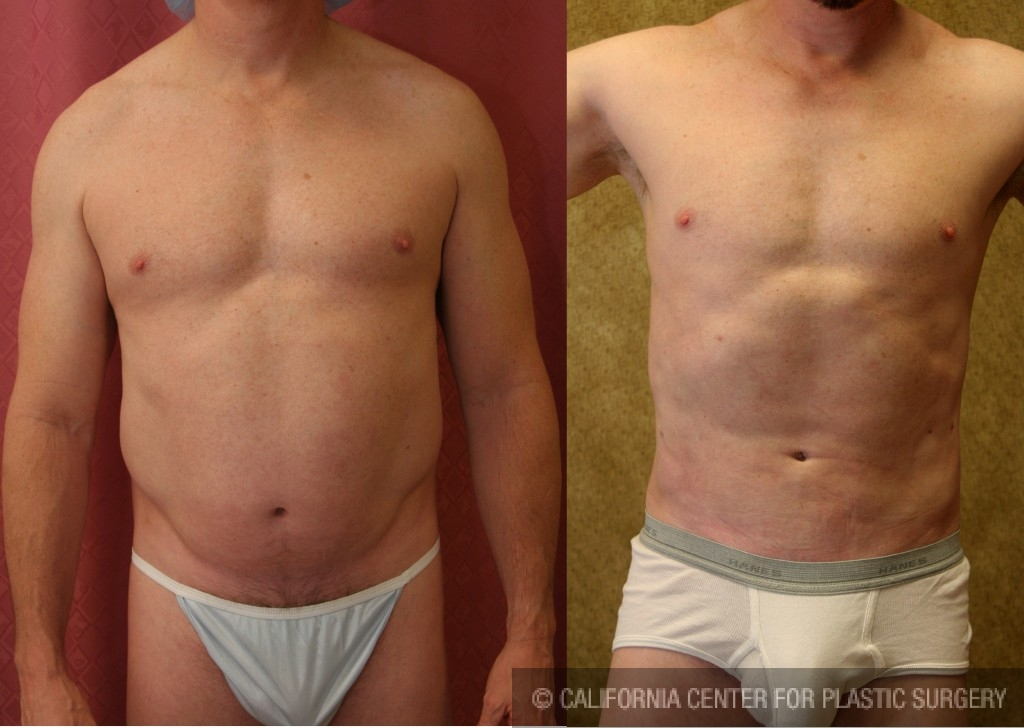 Patient 5670 Male Liposuction Abdomen Before And After Photos Beverly Hills Plastic Surgery Gallery Los Angeles Ca Dr Sean Younai