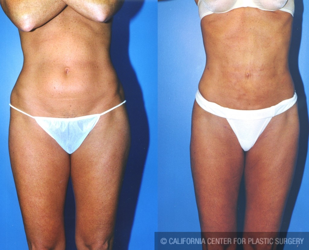 Patient 5548 Liposuction Abdomen Medium Before And After Photos Beverly Hills Plastic Surgery Gallery Los Angeles Ca Dr Sean Younai