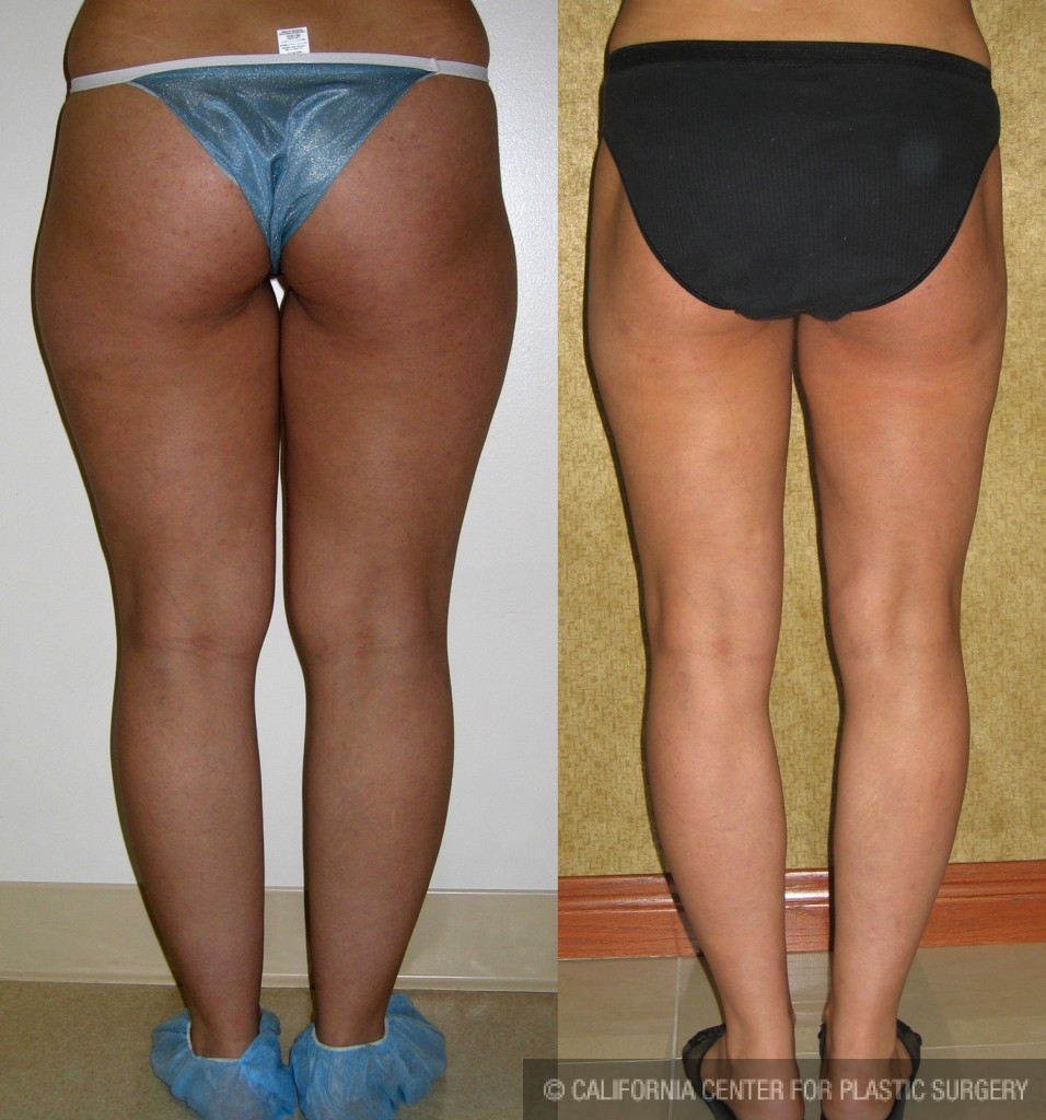 Patient #6682 Liposuction Thighs Before and After Photos Los