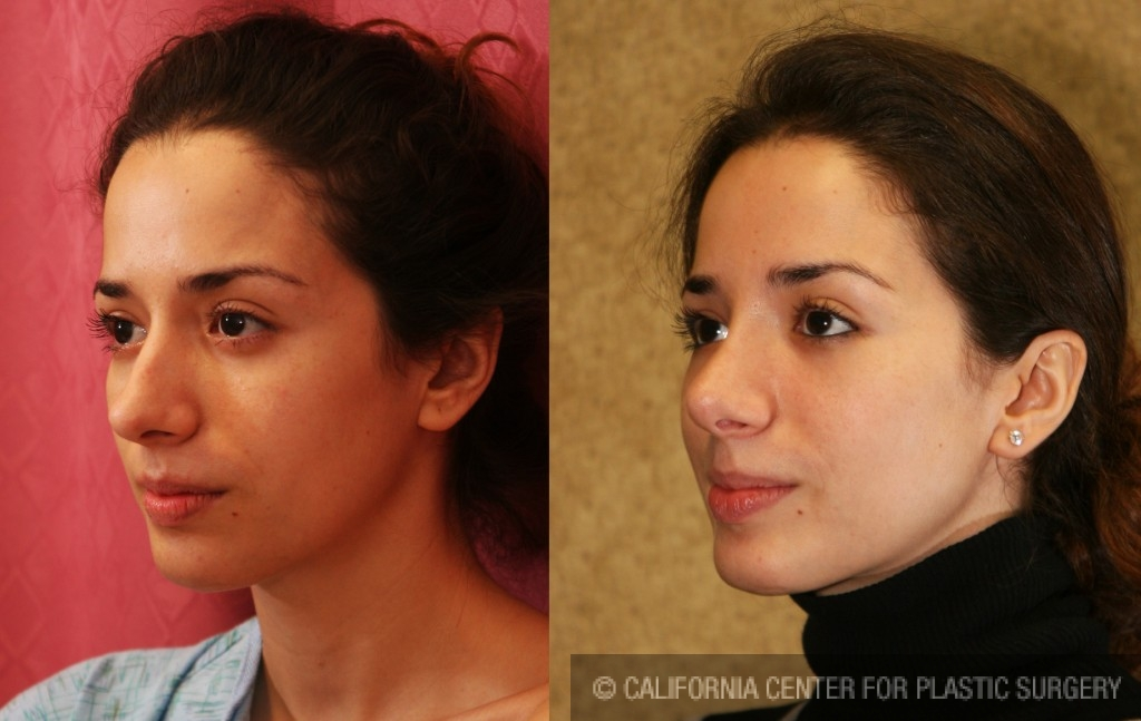 Patient 6196 Caucasian Rhinoplasty Before And After Photos Beverly Hills Plastic Surgery Gallery Los Angeles Ca Dr Sean Younai