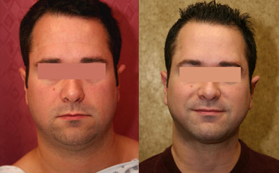 Patient 9513 Male Neck Face Liposuction Before And After Photos Beverly Hills Plastic Surgery Gallery Los Angeles Ca Dr Sean Younai
