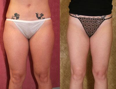 Upper Thigh Liposuction Los Angeles | Thigh Liposuction