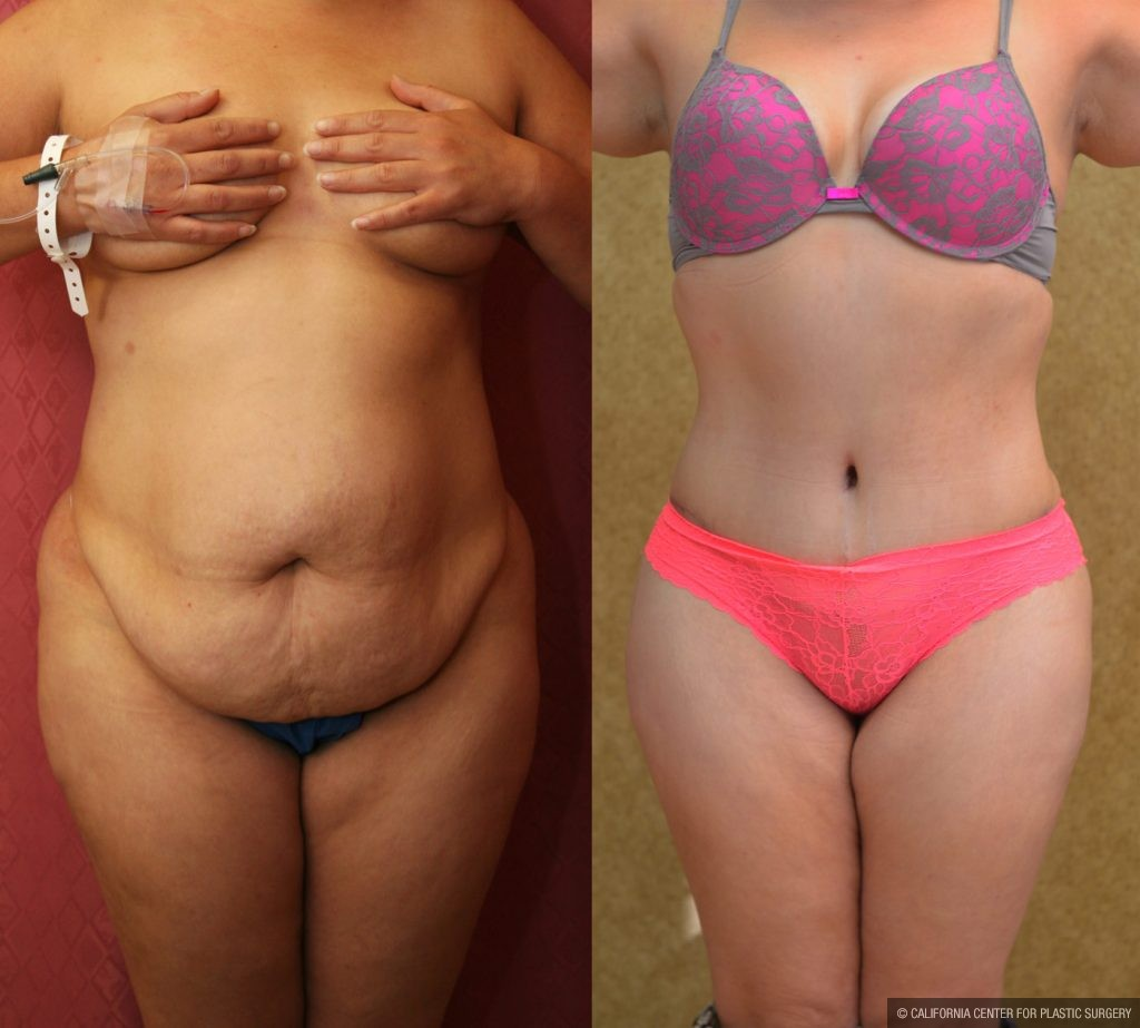 Plus Size Tummy Tuck Los Angeles | Tummy Tuck For Overweight