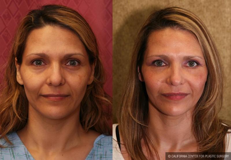 Eyelid (Blepharoplasty) Before & After Patient #9859