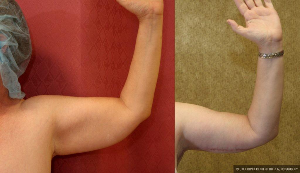Arm Lift (Brachioplasty) Before & After Patient #9961