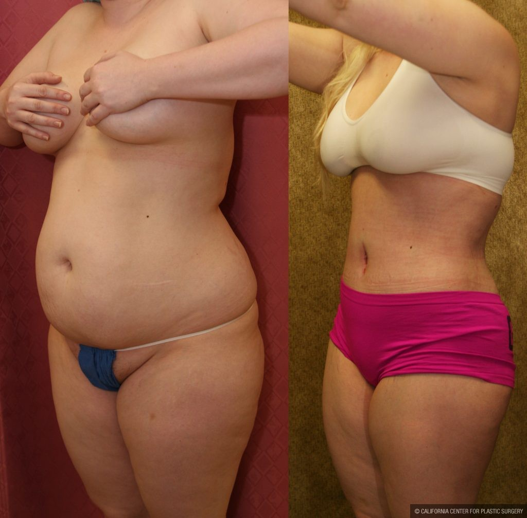 Patient 10346 Body Contouring Before And After Photos Beverly