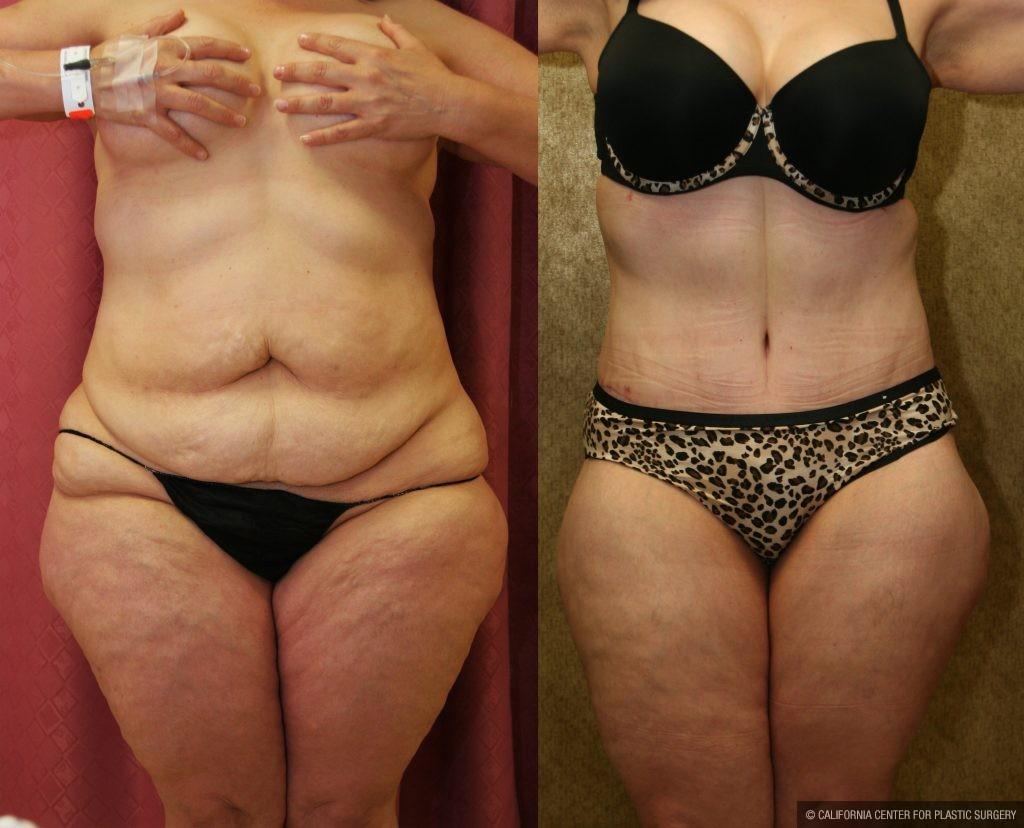 Large Volume Liposuction   Plus Size Lipo   Dr  Younai
