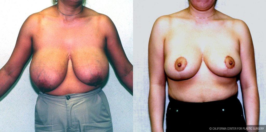 Intimate bikini bra enhancer pads