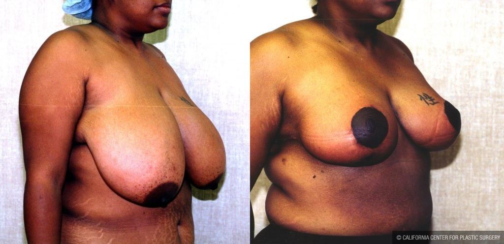 Breast Enhancement Before & After Patient #10493