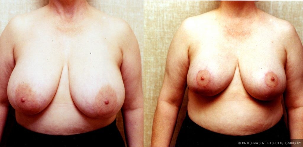 Breast Enhancement Before & After Patient #10496