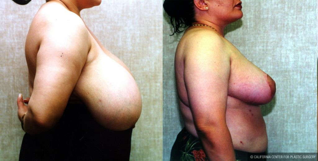 Breast Enhancement Before & After Patient #10499