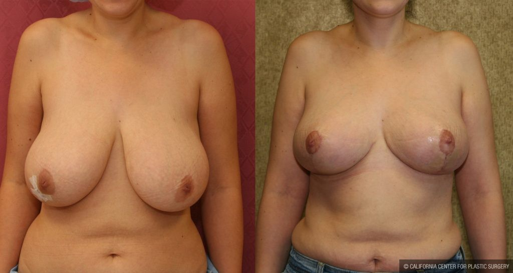 Breast augmentation in northern va