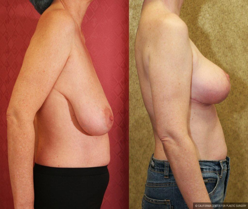 Breast lift pics mormon butt