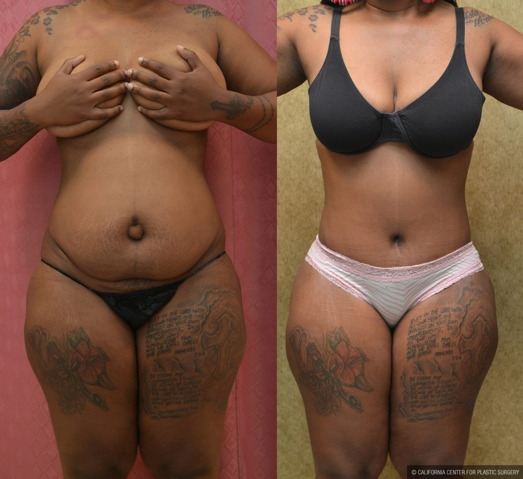 Tummy Tuck Medium Size Before & After Patient #11046
