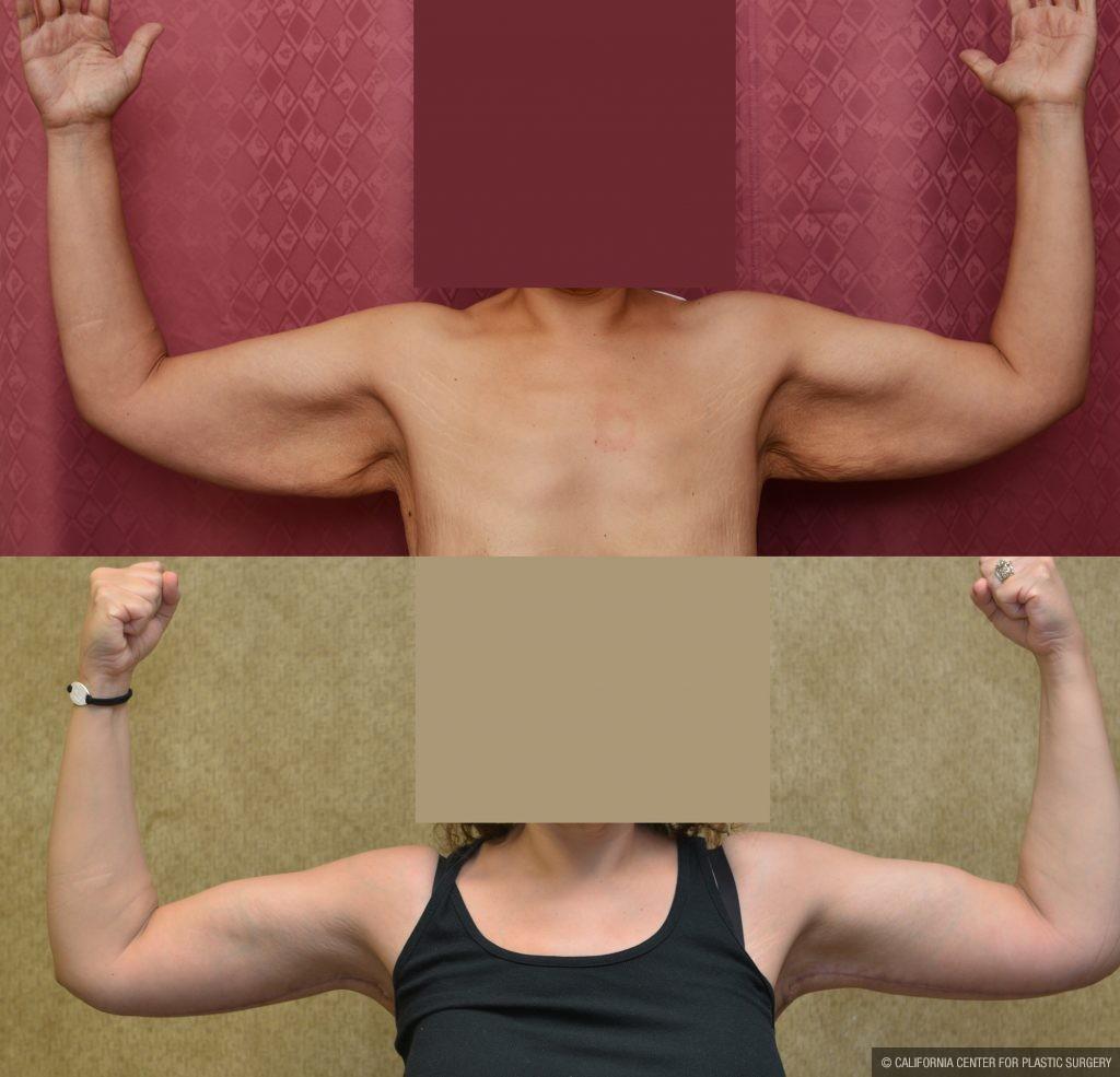 Arm Lift (Brachioplasty) Before & After Patient #10840