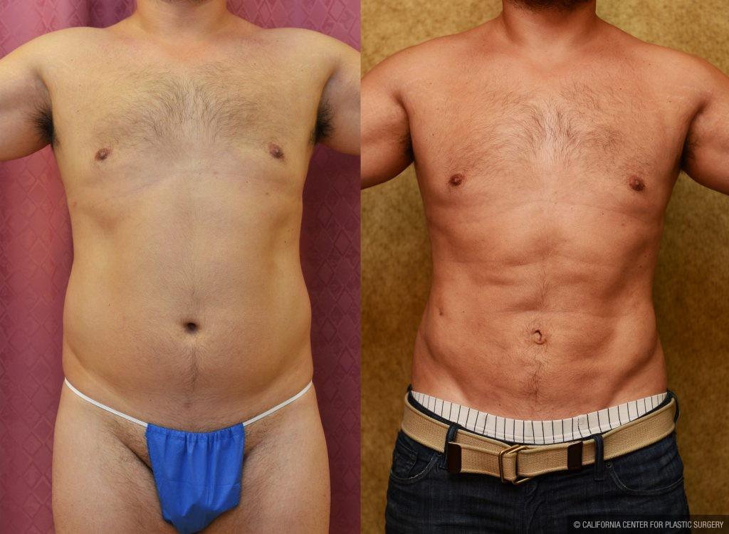 Liposuction Abdomen Medium Before & After Patient #10954