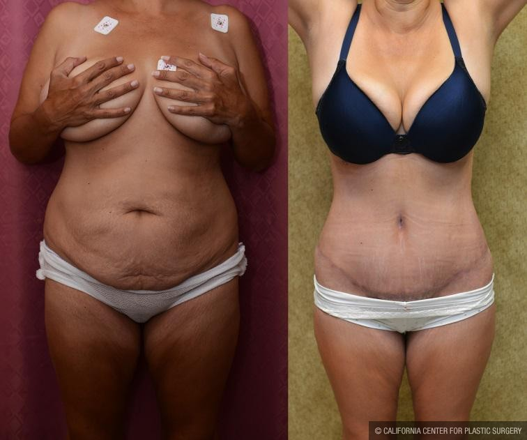 Tummy Tuck Scars Before & After Patient #11111