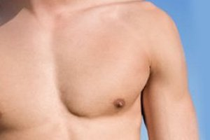 Male Breast Reduction Los Angeles Beverly Hills Gynecomastia