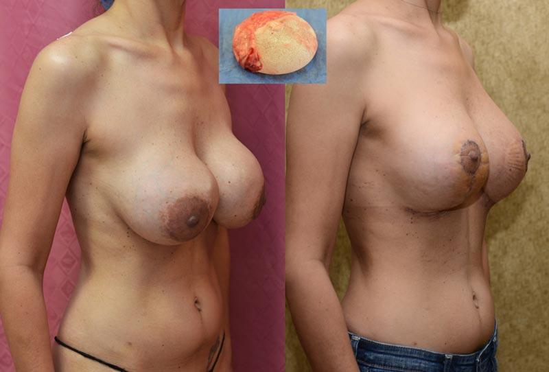 Breast Augmentation Beautifull