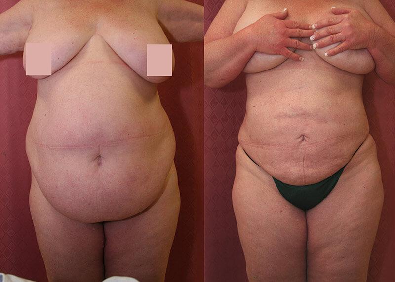 Large Volume Liposuction | Plus Size Lipo | Dr  Younai