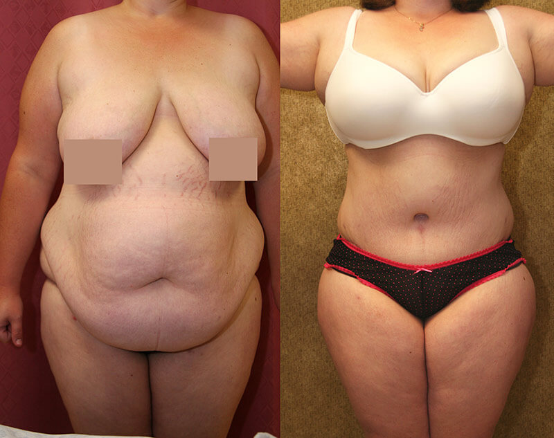 Plus Size Tummy Tuck Los Angeles Tummy Tuck For Overweight People