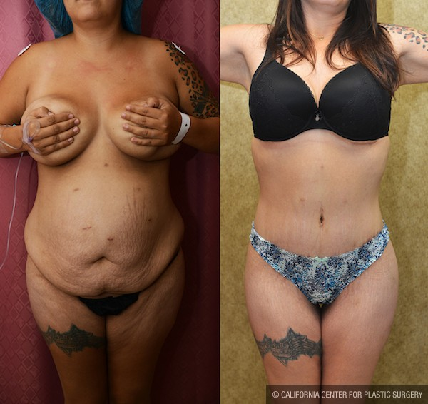 Tummy Tuck Medium Size Before & After Patient #12669