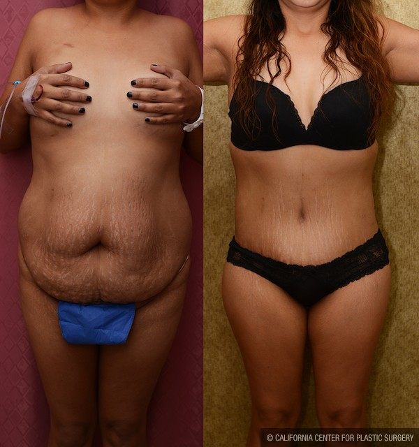 Tummy Tuck Plus Size Before & After Patient #12673
