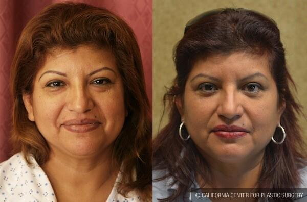 Eyelid (Blepharoplasty) Before & After Patient #12615