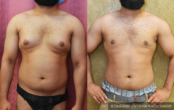Male Breast Reduction Before & After Patient #12658