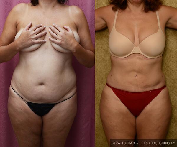 Liposuction Abdomen Medium Before & After Patient #12597