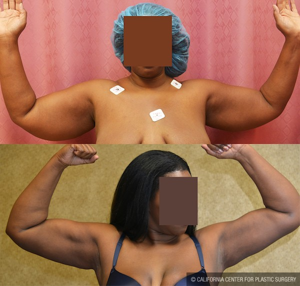 Liposuction Arms Before & After Patient #12666