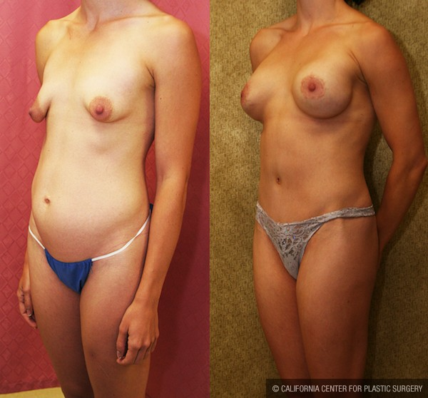 Tummy Tuck Medium Size Before & After Patient #12824