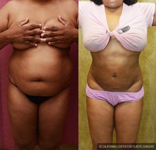 Liposuction Abdomen Medium Before & After Patient #12778